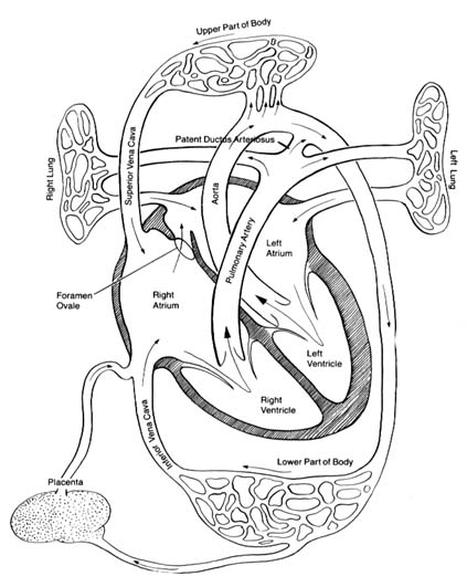 Understanding Heart Disease
